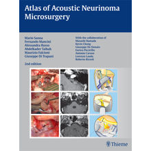 Atlas of Acoustic Neurinoma Microsurgery 2/e