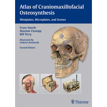 Atlas of Craniomaxillofacial Osteosynthesis: Microplates, Miniplates, and Screws 2/e